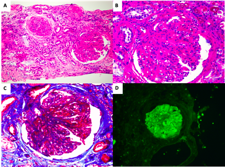 Figure 2: Renal biopsy. (A) Glomerulus with membranoproliferative pattern of injury and globally sclerotic glomeruli. Tubulointerstitial compartment has marked chronic changes with tubular atrophy and interstitial fibrosis (HE stain); (B) Glomerulus with prominent mesangial expansion and mesangial cell hypercellularity. Glomerular basement membrane is thickened (PAS stain); (C) Same glomerulus showing double contours with large mesangial and subendothelial deposits staining red in trichrome stain; (D) Direct immunofluorescence for C3 showing 3+ staining in capillary wall and mesangium.