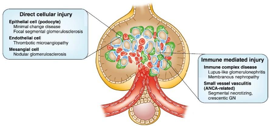 Meccanismi alla base del danno glomerulare indotto da tossi e farmaci.