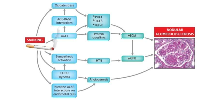 Meccanismi fisiopatologici di danno glomerulare
