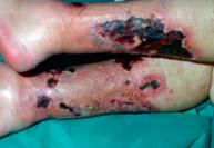 Figura 2. Lesioni da calcifilassi (particolare arti inferiori)